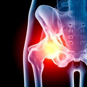 Hip Exercises For Bursitis